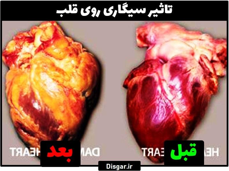 تاثیر سیگار روی قلب