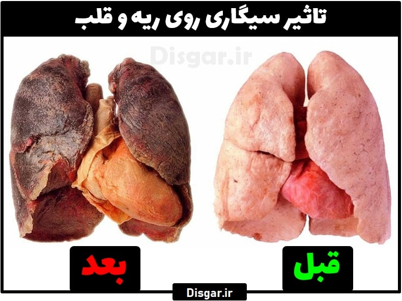 تاثیر سیگار روی ریه