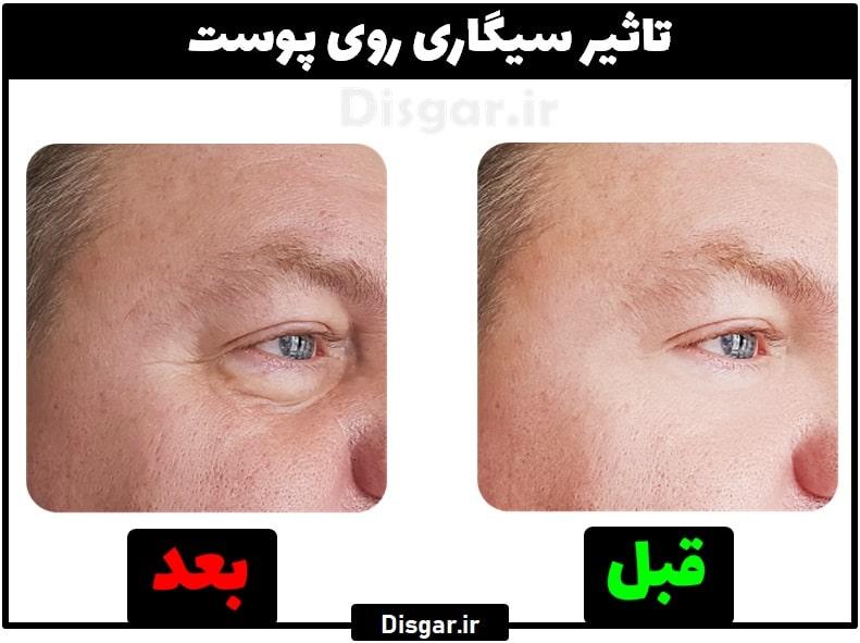 تاثیر سیگار روی پوست